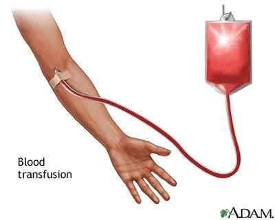 دانلود پاورپوینت تزریق خون